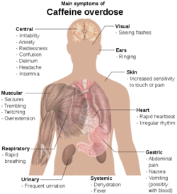Main symptoms of caffeine overdose.png